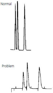 hplc troubleshooting